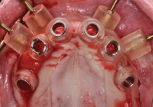 יתרונות קלינים של ניתוח מונחה מחשב